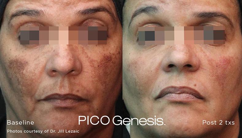 enlighten_pico-genesis_5