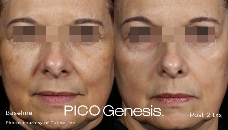enlighten_pico-genesis_7